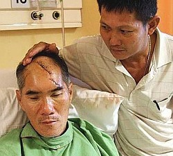 Johor Bahru snatch theft slash head